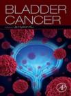 Image for Bladder cancer