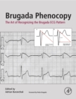 Image for Brugada phenocopy: the art of recognizing the Brugada ECG pattern