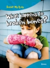 Image for What happens to broken bones?