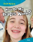 Image for How do my braces work?