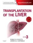 Image for Transplantation of the liver