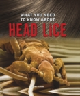 Image for What you need to know about head lice