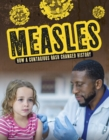 Image for Measles  : how a contagious rash changed history