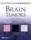 Image for Brain Tumors : 2