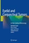 Image for Eyelid and conjunctival tumors  : in vivo confocal microscopy