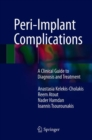 Image for Peri-implant Complications: A Clinical Guide to Diagnosis and Treatment