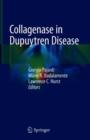 Image for Collagenase in Dupuytren Disease