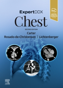 Image for ExpertDDx: Chest