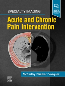 Image for Specialty Imaging: Acute and Chronic Pain Intervention