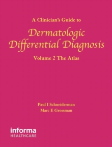 A Clinician's Guide to Dermatologic Differential Diagnosis (Encyclopedia of Differential Diagnosis in Dermatology S) (Volume 2)