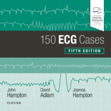 Image for 150 ECG cases