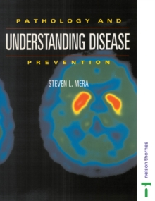 Image for Understanding disease prevention  : pathology and prevention