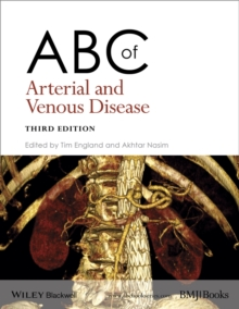 Image for ABC of arterial and venous disease