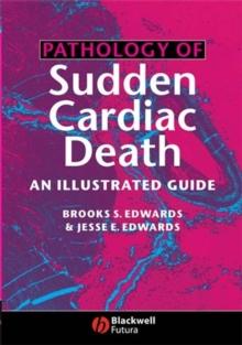 Image for Pathology of sudden cardiac death