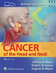 Image for Cancer of the Head and Neck