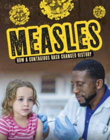 Measles  : how a contagious rash changed history - Lewis, Mark K.