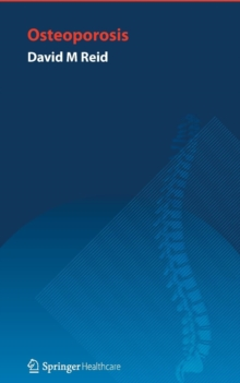 Image for Handbook of osteoporosis