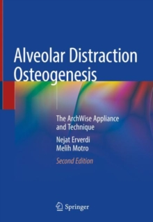 Image for Alveolar Distraction Osteogenesis : The ArchWise Appliance and Technique